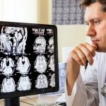 Accurately diagnosing dementia can involve working with several different medical specialists.